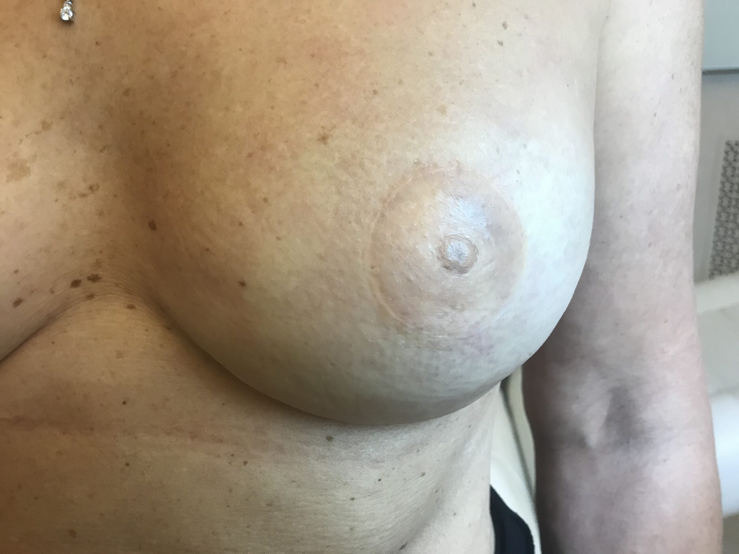 Avant dermopigmentation