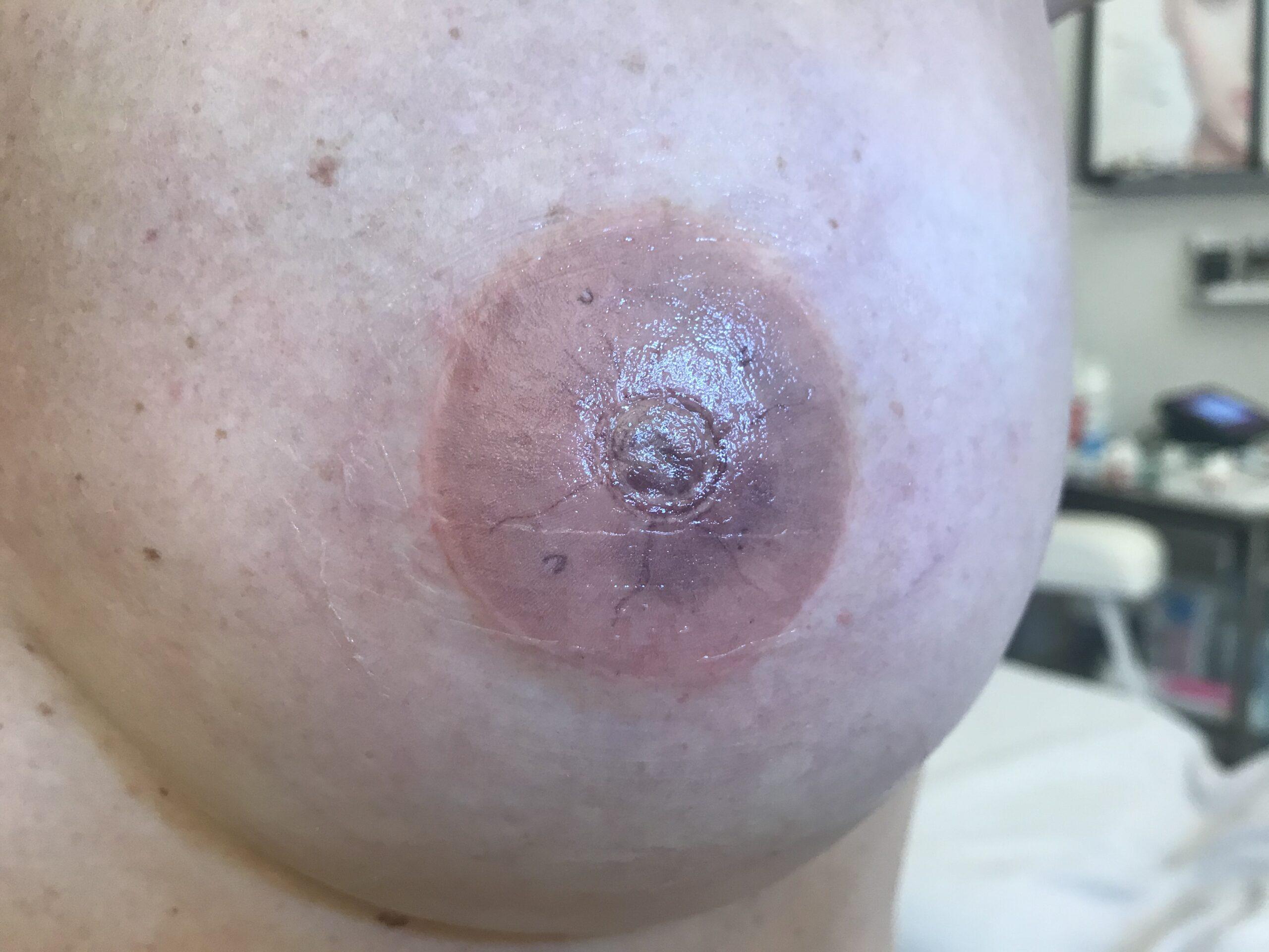 Dermopigmentation mammaire